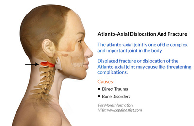 atlanto-axial-dislocation-and-fracture